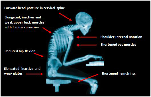 physical-anatomy-problems-sitting-computer-wrong-posture